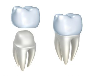 """You've had a complex cavity in one troublesome tooth for longer than you'd like – so you finally went to your Zionsville dentist to have things taken care of, once and for all. Rather than having another filling, your dentist suggested a dental crown in Zionsville as the correct treatment method. But, after having your tooth prepared and the permanent crown placed, something is off. The crown doesn't look right, and it definitely doesn't match your existing teeth. So, rather than going back to the same dentist for the same disappointing quality, you visit the team at Trinity Dental who explain what good dental crown work should be. <!--more--> What Are Dental Crowns? Before we get into the details about good or bad dental crown work, let's define what a dental crown is: these are tooth-shaped """"caps"""" that fit over your existing teeth or a dental implant. They are made of durable, biocompatible porcelain that blends right in with your natural smile. How Can I Tell If I Have A Good Dental Crown? Dr. Angelo M. Julovich explains that a good dental crown will have the following qualities: • Your dental crown will fit perfectly. • It will match the surrounding teeth with the same shape and contour. • It will look like it comes out of the gum tissue straight and naturally, like your other teeth. • It will make proper contact with opposing teeth to give you a correct bite. • It will match the color of your surrounding teeth. How Can I Tell If I Have A Sub-Par Dental Crown? Although most dentists offer crowns, they may not have the experience in actually placing them like Dr. Julovich has, which can lead to a bad-looking or fitting crown. These will reflect the following: • Poor fit – which causes recurrent tooth decay and sensitivity. • The crown will need to be replaced frequently and will fail quickly. • Over-contoured crowns will cause inflammation around the tooth, gum disease, decay, and quick crown failure. • The crown might look like a hat sitting on a hat rack, rathe"""