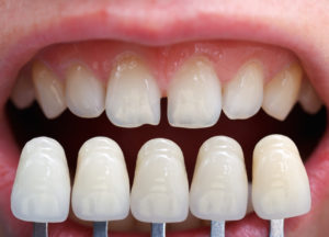 shade determination for dental crowns